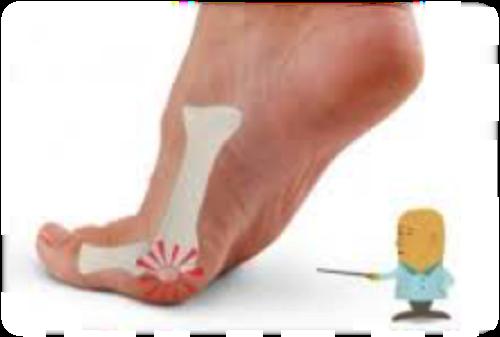 mal de pied podologie
